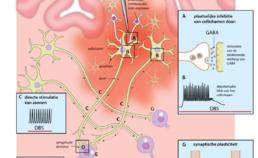 Mechanismen van hoogfrequente diepe hersenstimulatie (DBS)