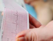 Monitoring van het ECG gedurende het gebruik van antidepressiva: een product uit de Generieke module Bijwerkingen