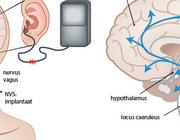 Nervusvagusstimulatie in de behandeling van behandelresistente epilepsie en depressie