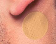 Scopolamine bij clozapine-geïnduceerde speekselvloed